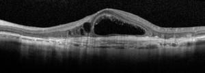 OCT in caso avanzato di degenerazione maculare neovascolare.