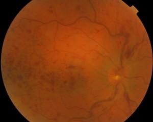 Figura 1: Occlusione venosa centrale della retina