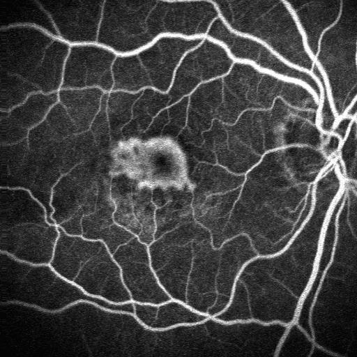 Membrana neovascolare subfoveale prima della terapia fotodinamica  (fluorangiografia)