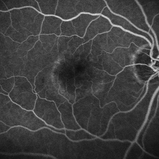 Membrana neovascolare subfoveale dopo la terapia fotodinamica  (fluorangiografia)