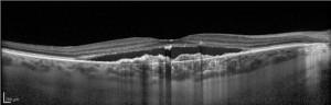 Scansione OCT in CSC cronica vascolarizzata.