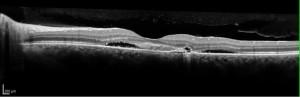 Scansione OCT in corioretinopatia sierosa centrale