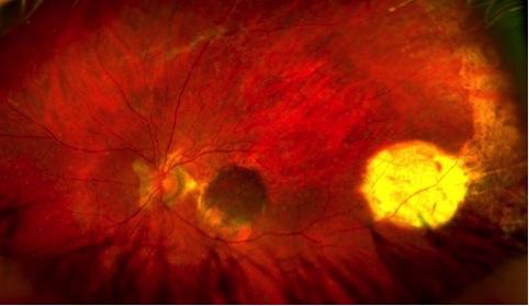 Fondo oculare dopo autotrapianto di patch di epitelio pigmentato e coroide prelevato dalla periferia e trasferito sotto la macula