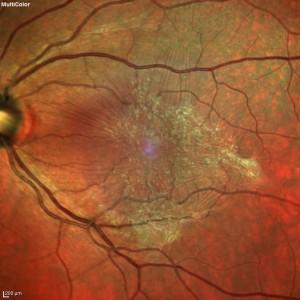 Figura 3. Membrana epiretinica trazionale benvisibile sulla superficie retinica all'immagine multicolor.