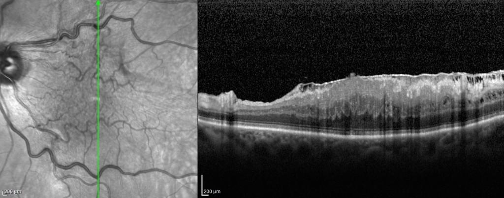 Figura 5. Immagine OCT di membrana epiretinica idiopatica sulla supeficie retinica associata ad edema maculare.