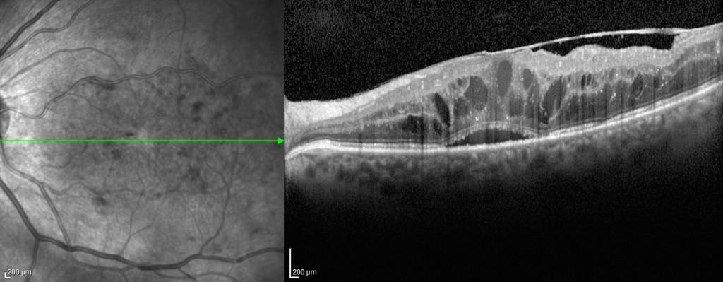 Figura 6. Immagine OCT di membrana epiretinica secondaria a retinopatia diabetica associata a cisti intarretiniche.