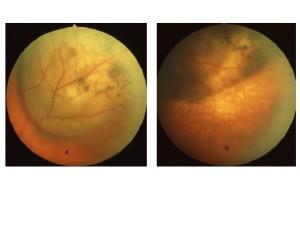 Fig. 5: Melanoma coroideale prima (a) e dopo (b) il trattamento brachiterapico con I 125. Notare la riduzione volumetrica della lesione.