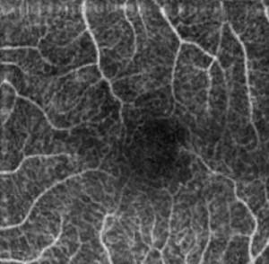 Angiografia OCT della macula senza iniezione di coloranti