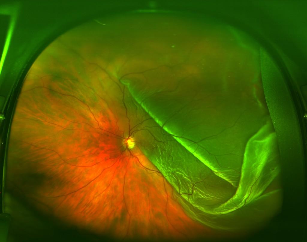 Retina parzialmente distaccata con coinvolgimento della macula (macula-off)
