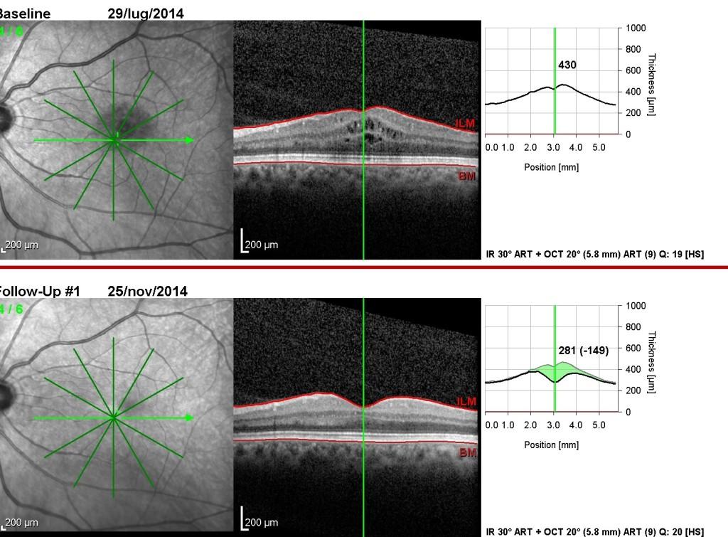 OCT in edema maculare cistoide post-chirurgico prima e dopo terapia anti-VEGF