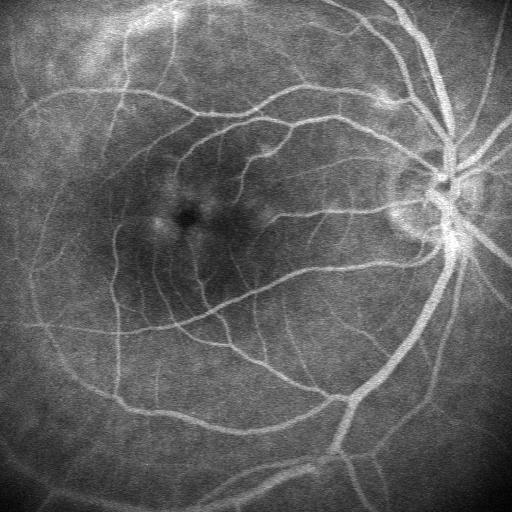 Fluorangiografia in edema maculare associato a uveite