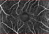 Cambio di rotta nella diagnosi delle maculopatie: l'angiografia-OCT